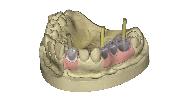 Implant Module
